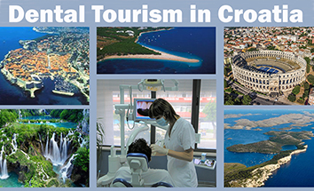 Croatia Dental Tourism in Split